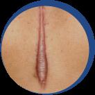 Zmanjšanje in nega brazgotin